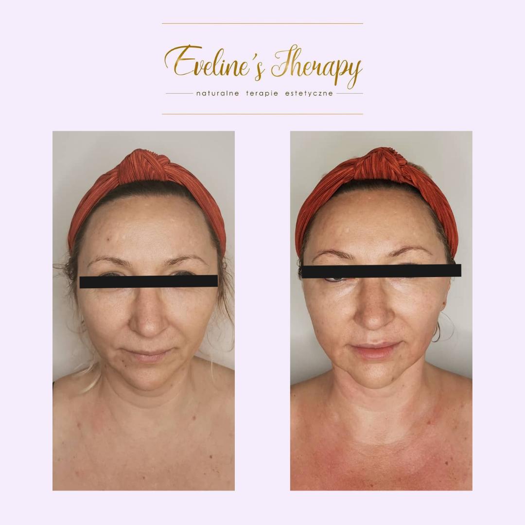 Evelines Therapy Ewelina Kulasik efekty zabiegów przed po facemodeling (2)