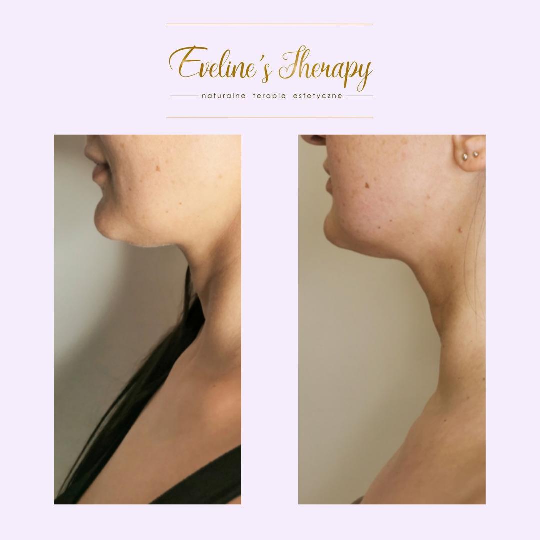 Evelines Therapy Ewelina Kulasik efekty zabiegów przed po facemodeling (6)