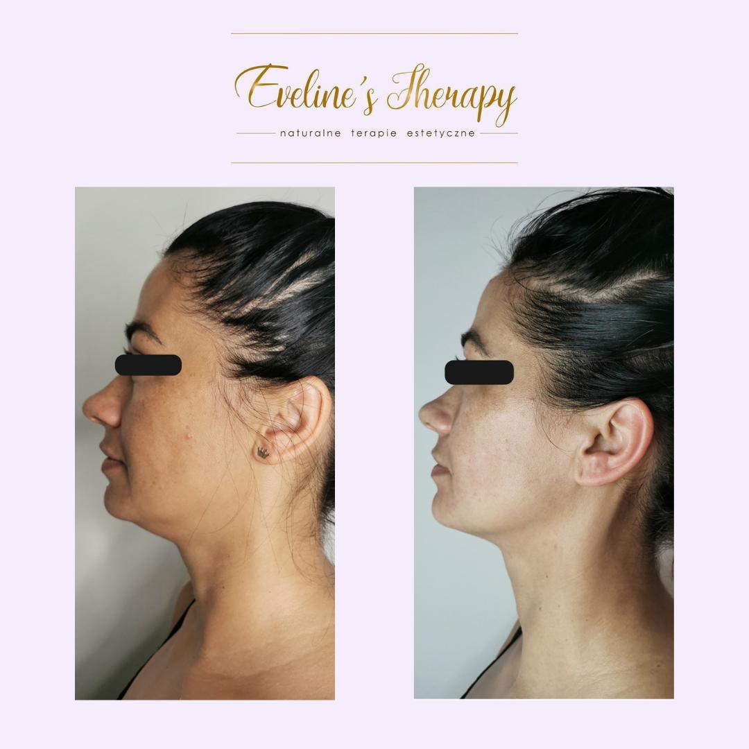 Evelines Therapy Ewelina Kulasik efekty zabiegów przed po facemodeling (1)