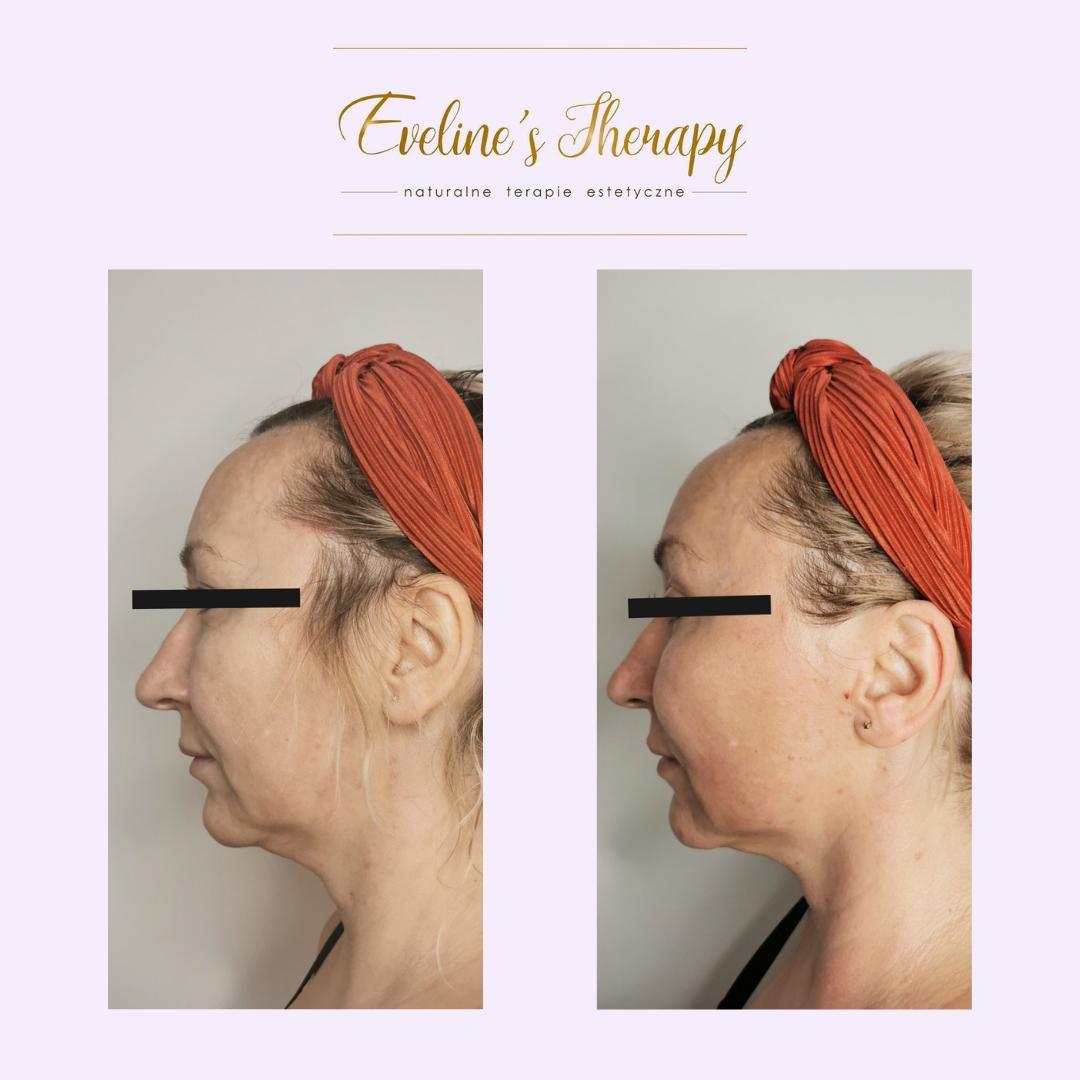 Evelines Therapy Ewelina Kulasik efekty zabiegów przed po facemodeling (3)