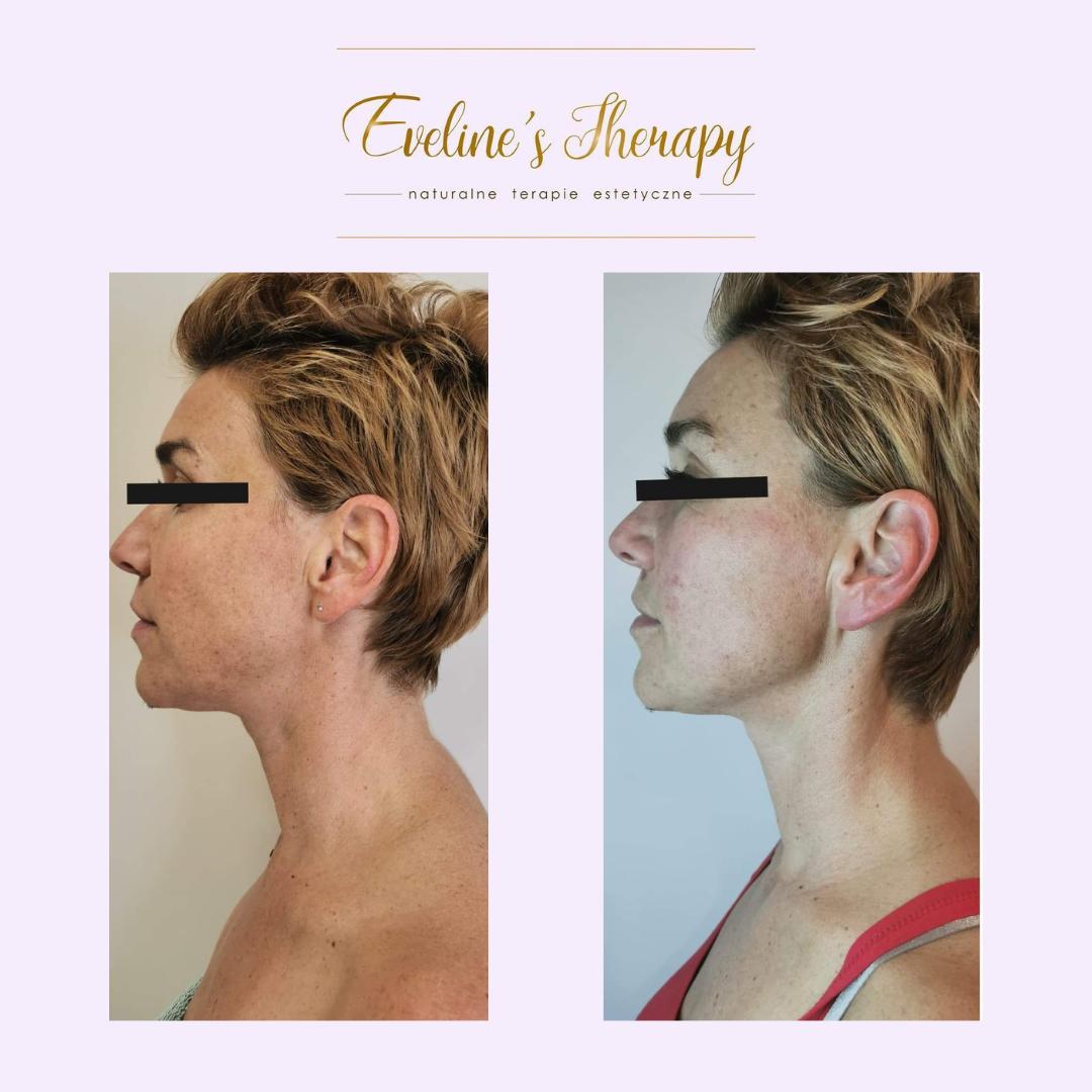 Evelines Therapy Ewelina Kulasik efekty zabiegów przed po facemodeling (4)