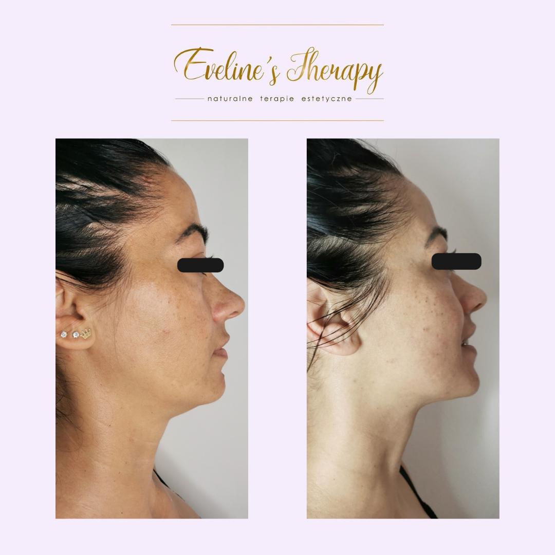 Evelines Therapy Ewelina Kulasik efekty zabiegów przed po facemodeling (5)